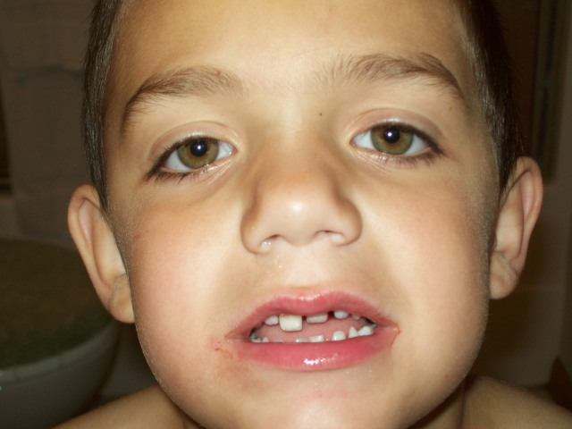 Joshua 5 years tooth injury