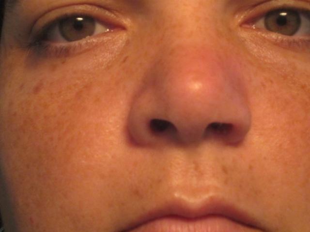 swollen nose